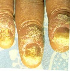 yellow, white hyperkeratotic ddebris, crumbly toenails, generally due to trichophyton rubrum, KOH and culture
