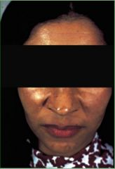 Common acquired hypermelanosis