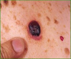 Account for 16% of all melanomas, Median 50 years, Evolves over 6 - 18 months, Rarely associated with a nevus remnant, worse prognosis than superficial spreading bc of vertical growth and thickness