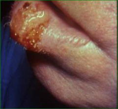 Fleshy, granulating, friable, crusted nodules, Has the capacity to metastasize, Any persistent nodule, plaque or ulcer, especially in areas of sun-exposure, radiation dermatitis, old burn scars or on the genitalia must be biopsied, Excision, SCC h...