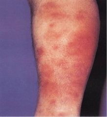 Acute inflammatory/immunologic reaction caused by a number of etiologies, Painful, tender nodules on the lower legs, fever, malaise, 50% with arthralgias, F:M 3:1, Infection - Group A ß-hemolytic Strep and others, Drugs - Sulfa, OCP, Sarcoidosis,...
