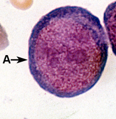 Large round nucleus with dark blue cytoplasm.  Nucleus will have nucleoli.