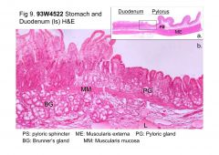 Abrupt change in epithelium.  Duodenum has a villi brush border. Brunner's Glands in the submucosa.