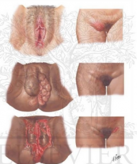 swollen inguinal lymph nodes that may ulcerate ulcers on the genitals