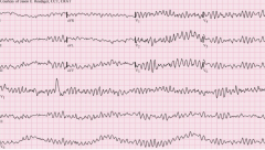 - Irregular ventricular impulses with high frequency where cardiac output is 0. - Causes symptoms resembling Stokes-Adams syndrome.
