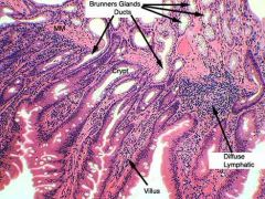 Crypts of Lieberkuhn are intestinal glands, which contain Paneth cells, which in turn, contain eosinophilic granules. Brunner's Glands in submucosa.