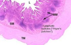 Peyer's Patches are extremely basophilic lymphatic nodules.  MALT = mucosa Associated Lymphatic Tissue  