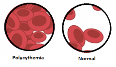 How does polycythemia effect viscosity and what is the effect on the heart?