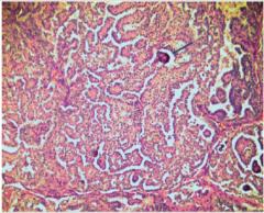 - differenziertes Karzinom - papilläre (obligat!) und follikuläre Strukturen - charakteristische blasse, große Zellkerne (Milchglaskerne) und Kalkablagerungen (Psammomkörperchen)