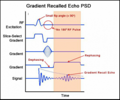 1)SMALL (<90 degree) excitation pulse creates SOME transverse magnetization 2) Phase and frequency gradients applied to codify the patial location 3) A negative frequency gradient is applied and causes rapid dephasing 4) A positive frequency gr...