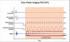 Frequency encode gradient cycles continuously reduced image matrix superfast T2 weighted  THIS IS THE DWI