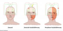 ・ Zentrale Nervus-facialis-Läsion (VII)- Ausfall der kontralateralen mimischen Muskulatur → Kontralateral hängender Mundwinkel  - Lidschluss und Stirnmuskulatur sind nicht betroffen (Die mimische Muskulatur der oberen Gesichtshälfte wird vo...