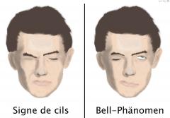 """- Dem Patienten folgende Aufgaben geben: Pfeifen, Wangen aufblasen, Augen schließen, Stirn runzeln - Signe de cils (""""Wimpernzeichen"""", von frz. """"signe"""" = Zeichen und """"cil"""" = Wimper) - Sichtbares Bell-Phänomen bei aktivem Lidschluss"""