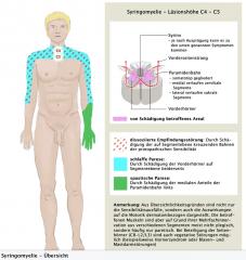 - Prodromi: Nicht selten Ausbildung einer Kyphoskoliose Jahre vor der neurologischen Symptomatik- Aufgehobenes Schmerz- und Temperaturempfinden in Schultern und Armen  - Fluktuierende, radikuläre Schmerzen in Schultern und Armen - Im Verlauf Schl...