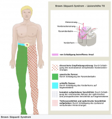 - Klinisch: Ipsilateral positiver Babinski-Reflex - Bildgebung: CT bei Trauma, MRT bei Verdacht auf einen Tumor