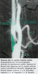 -Stenosen, Verschlüsse, Dissektionen, bei Verdacht auf Vaskulitiden und fibromuskuläre Dysplasie