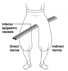 Hernia sac exists as both a direct and indirect hernia straddling the inferior epigastric vessels and protruding through the floor of the canal as well as the internal ring (two sacs separated by the inferior epigastric vessels - the pant crotch -...