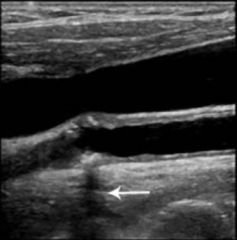In this image of an artery there is calcification with a dark vertical band extending beyond it (arrow). Which explanation best describes the etiology of the dark band? a) Propagation speed error at the vessel wall interface b) Reduction in signa...