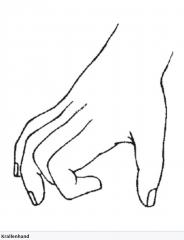 - Krallenhand  (besonders Klein- und Ringfinger betroffen) (Finger im Grundgelenk überstreckt und in den Mittel- und Endgelenken gebeugt) - Parese des M. adductor pollicis  - Sensibilitätsstörungen: Ulnare Hand → Palmar: Kleinfinger und ulnar...