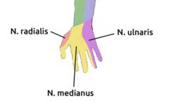 - Sensibilitätsstörungen wie proximale Läsion mit Ausnahme der Hypothenarregion  - Sonst Symptome einer proximalen Nervenläsion