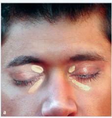 - scharf begrenzte, flache, hellgelbe Plaques am medialen Auge/Oberlid - meist bogenförmig und gegen die Unterlage verschieblich (Xanthelasma palpebrarum).