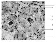 canaliculi central canal concentric lamellae lacunae matrix