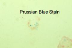 denatured ferritin  Prussian blue