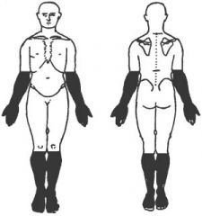 A sensory deficit following this pattern is also known as [ ... ] neuropathy.