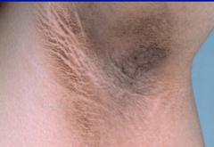 What is this skin-finding known as, and what specific condition is it associated with?