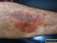 Name this pre-tibial lesion that usually begins with a well-circumscribed plaque with a waxy center and telangiectasia. What disease is it associated with in rare cases (<1%)?