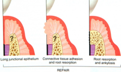 A LJE    CT adhesion/Root   resorption     Ankylosis/Root   resorption     Unpredictable   amount of osseous healing in repair