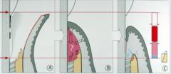 B: race of tissues   C: repair