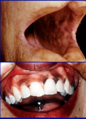 Oral hyperpigmentation is associated with...