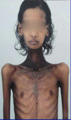 A patient, appearing like the one in the image, presents to your clinic with general weakness (asthenia), low blood pressure, and massive weight loss. What endocrine disorder may they be suffering from?