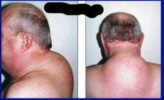 What symptom does this patient prominently display? What condition is this symptoms associated with?