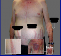 This patient presents to your clinic complaining of weight gain and headaches. Based on his appearance, what do you suspect he has? Name the symptoms he's displaying, plus other symptoms that are common with his disorder.