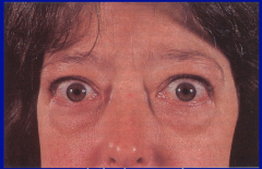 Name this finding and the associated condition