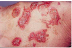 A skin finding like this one may be associated with...
