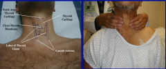Visual inspection during swallowing. Anterior palpation with right hand. Bimanual palpation from behind (shown)