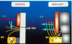 Tooth: oriented at different angles and fan out but some perpendicular to the tooth         Implant: Supracrestal fibers: Oriented predominantly parallel to the tooth