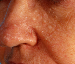 triad of: - fibrofolliculomas - trichodiscomas - acrochordons  acompanied by pulmonary cysts, spnotaneous PTX and increased risk of RCC  לפיכך במטופל שבו יש נגעים בפנים בצורת פפולות בגוון עור, מלוו...