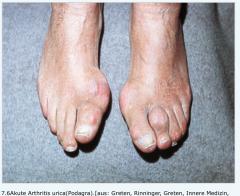 - Monarthritis mit sehr starken Schmerzen   - 60 % im Großzehengrundgelenk (Podagra   - seltenerBeteiligung des Sprung- oder Fuß-, Knie- und des Daumengrundgelenks (Chiragra)   - evtl.Fieber   - Im akuten Gichtanfall muss nicht zwangsl...