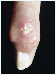 - Beginn nach 5–15-jähriger Hyperurikämie (heute selten)   - chronische Schmerzhaftigkeit   -Uratablagerungen (Gichttophi) im Weichteilgewebe (Ohrmuschel, Sehnenscheiden ) und im gelenknahen Knochen(mit Usuren, Osteophyten, Kortikali...