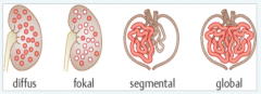 - diffus: Befall aller Glomerula - fokal: ungleichmäßiger Befall der Glomerula - segmental: nur Teile des Schlingenkonvoluts des Glomerulums befallen - global: ganzes Glomerulum gleichmäßig befallen.