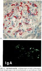 - In derImmunfluoreszenzfärbung IgA- und C3-Ablagerungen im Mesangium   -In der Lichtmikroskopie sind fokal-segmental betonte mesangiale Proliferationen