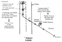 lesion could be in:   -the sensory area of the cerebral cortex   -third order neuron in the thalamus   -leminscus (ascending axons of second order neurons after they have crossed)
