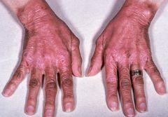 חסר בויטמין B3 - שהוא NIACIN! - רואים באלכוהוליסטים ובאלו שטופלו באיזוניאזיד (הפרעה במטבוליזם של טריפטופן). וגם במחלת הארטנפ -י photodistributed erythema...