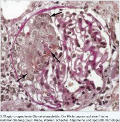 -Halbmonde:massive Proliferationen der Bowman-Kapsel   -Nachweis von frischen oder älteren Halbmondbildungen (unterschiedlich alte Läsionen, da schubweiser Verlauf)