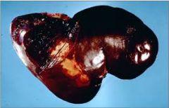 What clostridium causes blacks disease?