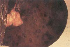 What colour is the liver lesion causing blacks disease?
